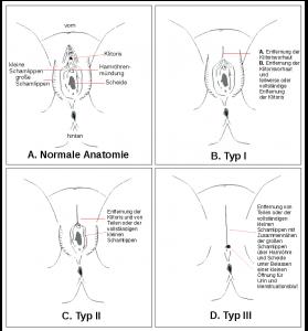 Schaubild der unterschiedlichen Beschneidungsformen bei weiblicher Genitalverstümmelung nach WHO