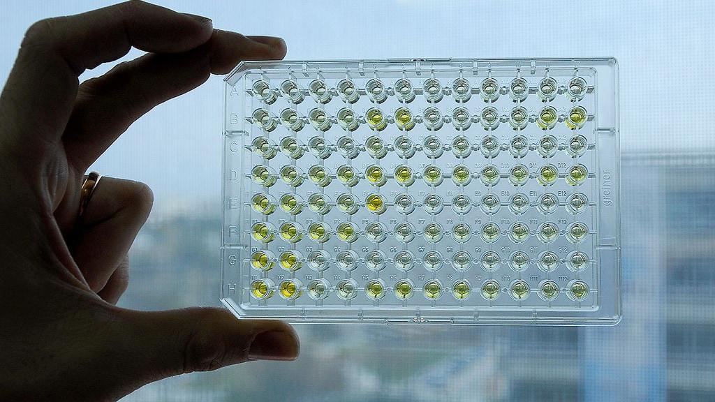 Medizinisches Labor zur Erforschung von Tuberkulose