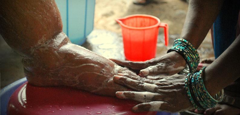 Wurmkrankheiten: Hände waschen einen durch Elephantiasis stark angeschwollenen Fuß
