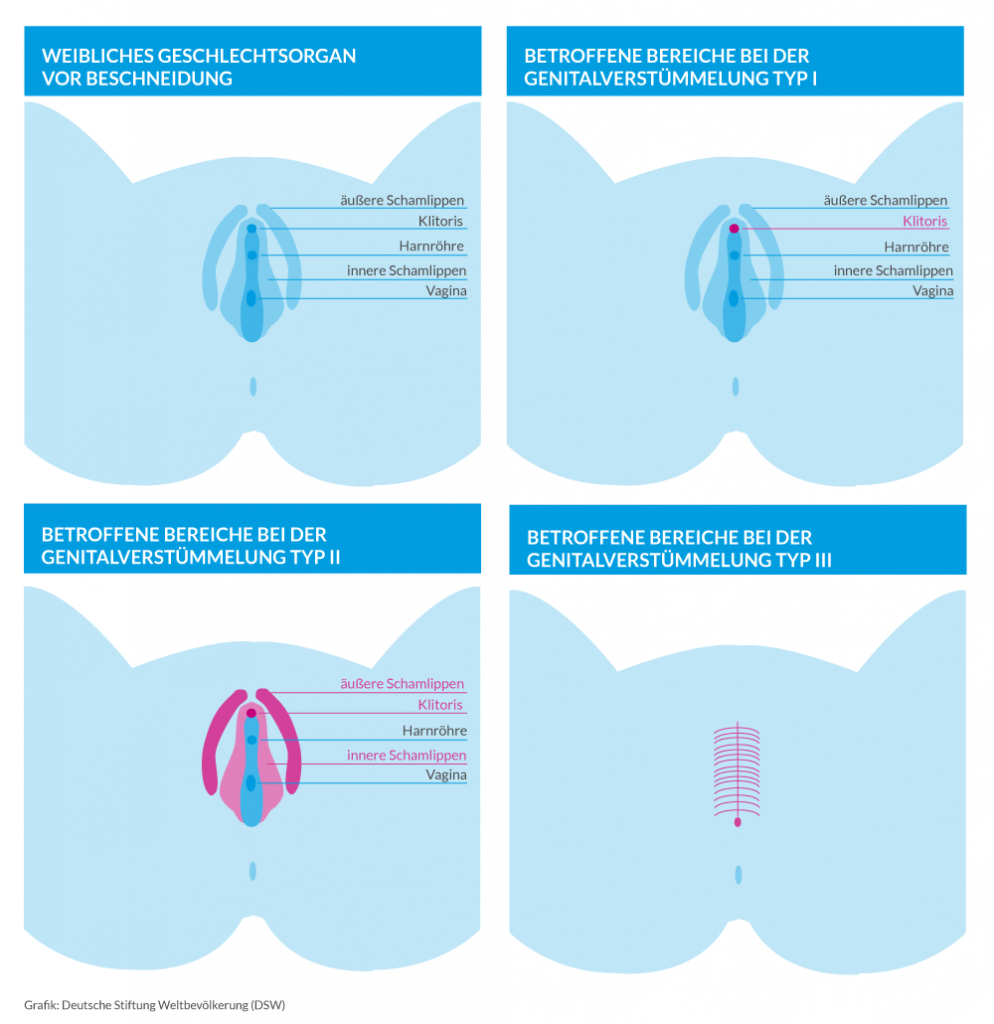 Varianten von weiblicher Genitalverstümmelung